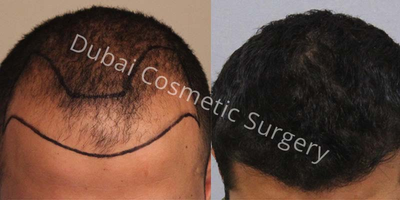 Dr Cagatay 2640 Grafts 12 Months
