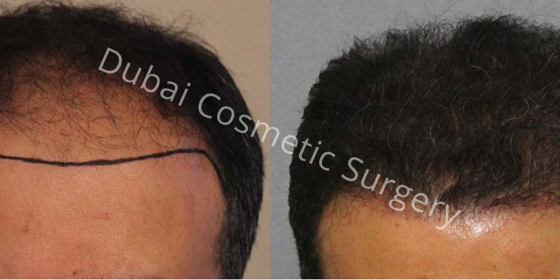 Dr Cagatay 2820 Grafts