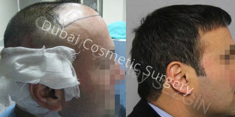 Dr Cagatay 3000 Grafts 12 Months Results