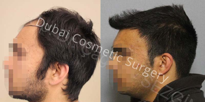 Dr Cagatay 3000 Grafts Side