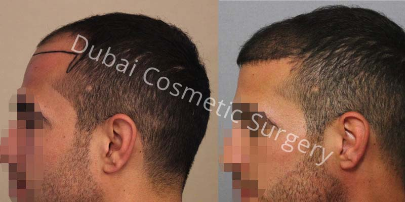 Dr-Cagatay-4-Months-Results