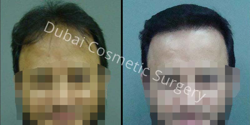 Hair Transplant Results 15