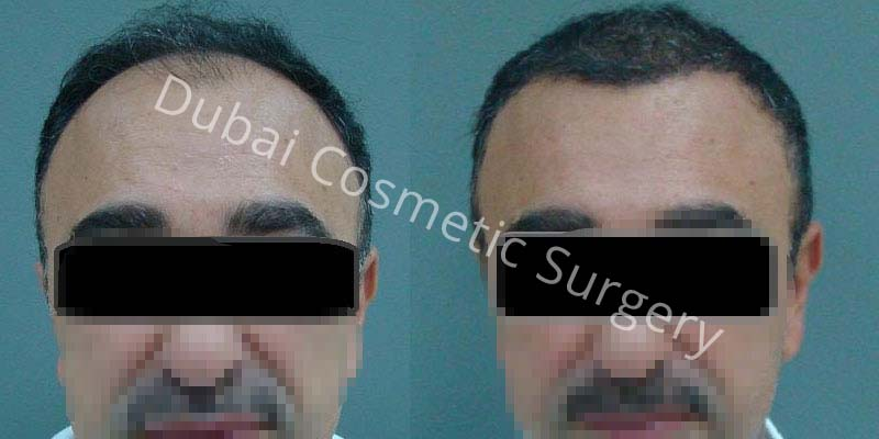 Hair Transplant Results 2