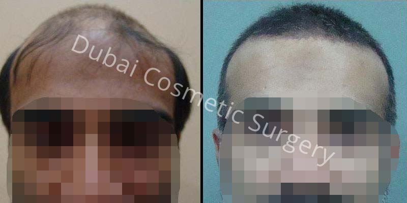Hair Transplant Results 30