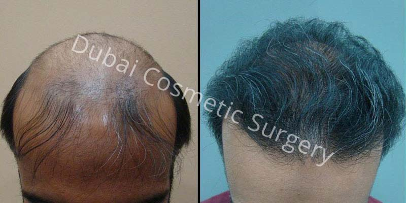 Hair Transplant Results 7
