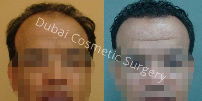 Hair Transplant Results 8