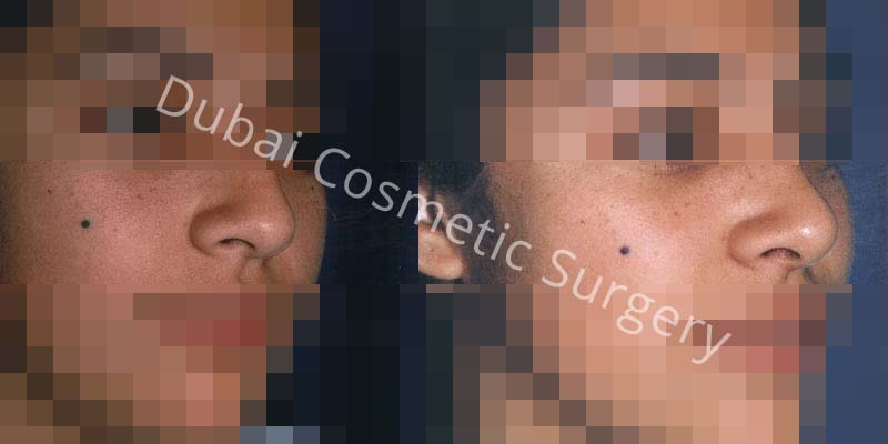 Nose Surgery Before After 10
