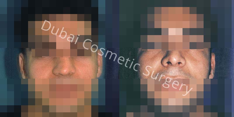 Nose Surgery Before After 13