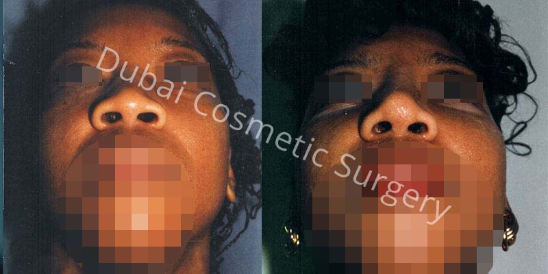 Nose Surgery Before After 15
