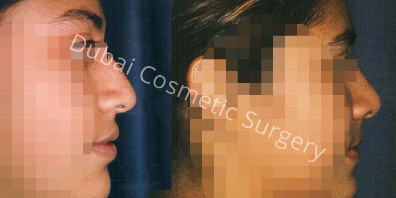 Nose Surgery Before After 9