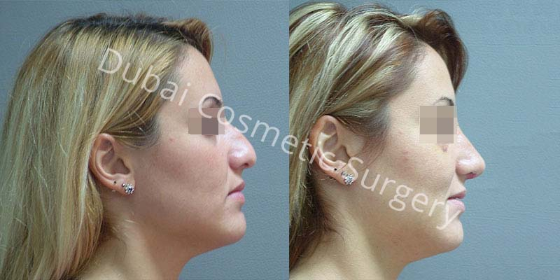 rhinoplasty Treatment